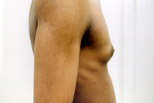 ofodile plastic surgery, male breast reduction