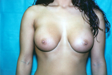 ofodile cosmetic surgery, breast enhancements
