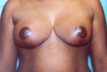 ofodile cosmetic surgery, breast reconstruction
