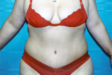 ofodile plastic surgery, fat suction