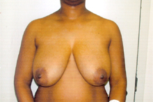 ofodile plastic surgery, breast reduction