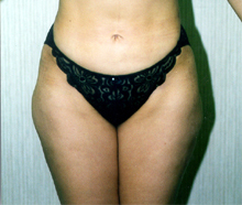 ofodile plastic surgery, fat removal